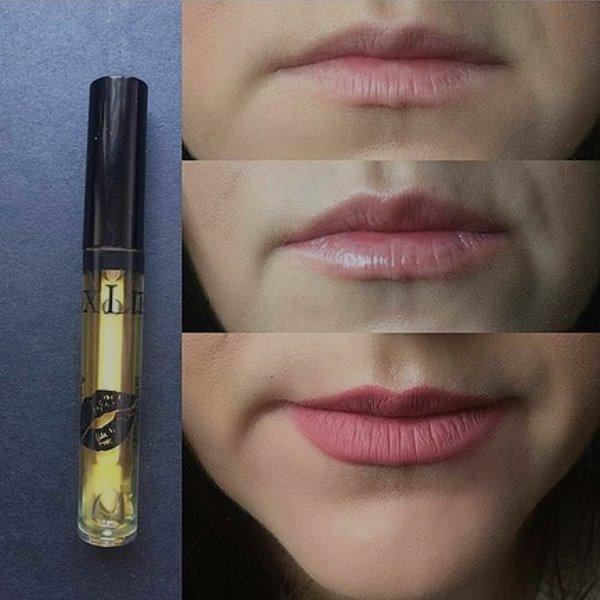 botox lip kullananlar